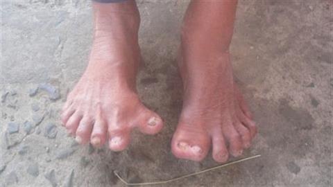 Kỳ lạ ông lão có đôi bàn tay, chân tới 26 ngón