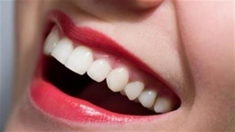 5 mẹo khiến hàm răng trắng