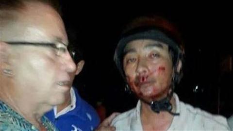 'Hơn 200 người nhìn thấy tai nạn nhưng không ai giúp đỡ'