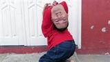 Nghị lực của người đàn ông có cái đầu... lộn ngược