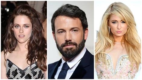 13 gương mặt 'đơ như cây cơ' nổi tiếng Hollywood