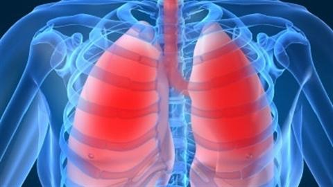 Làm sao để phổi khỏe, hết lo ung thư?