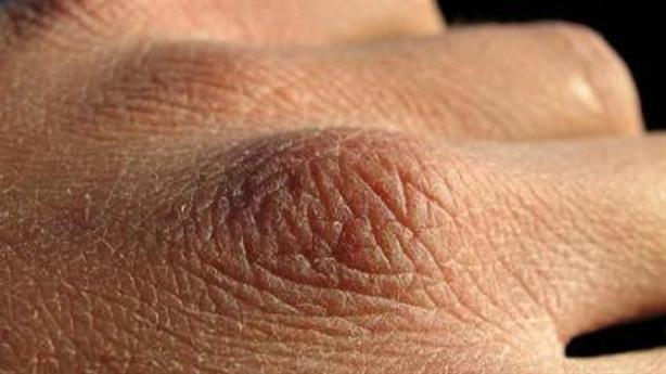 Bí quyết giúp da tay mềm mại trong mùa đông