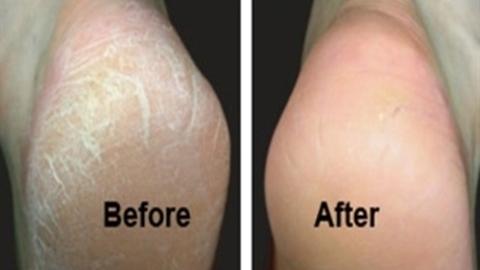 Mẹo chữa vết chai chân vô cùng hiệu quả!