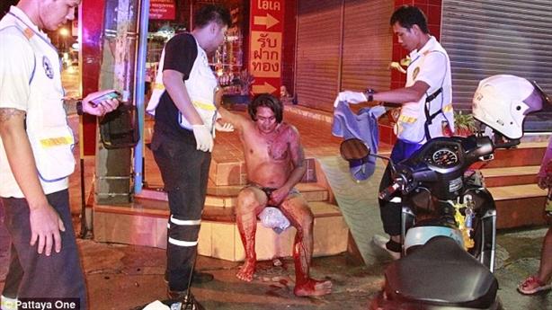 Tăm tia bạn vợ, chồng bị cắt ''của quý'' giữa phố