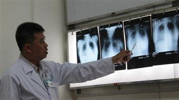 Nhiều phụ nữ Việt bị hội chứng Trái tim tan vỡ