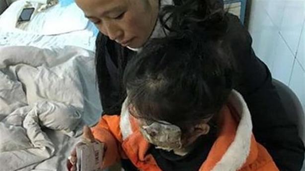 Điện thoại Samsung phát nổ, bé 5 tuổi bỏng nặng
