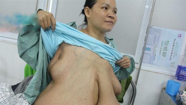 Người phụ nữ ngực bỗng đến gối: Không cần chồng về