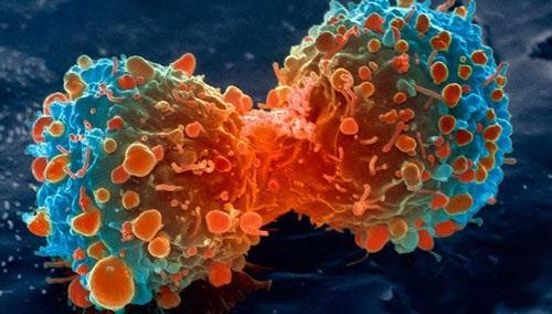 Kết luận bất ngờ nguyên nhân gây bệnh ung thư