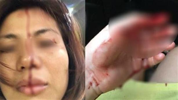 Vợ tố chồng bạo hành, ép 'yêu' suốt 5 tiếng