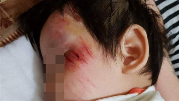 Thanh niên tông bé gái 11 tháng rồi chạy: 'Cháu khóc suốt'