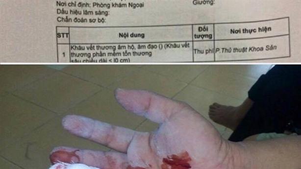 Bệnh nhân nam được chỉ định khâu âm hộ: Ấn nhầm chuột