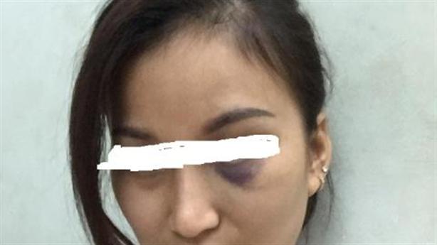 Vợ bị chồng, mẹ chồng đánh vì bắt được... chồng có bồ?
