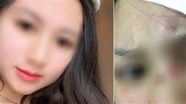 Tin mới vụ vợ xinh đẹp tố bị chồng đánh rách đầu