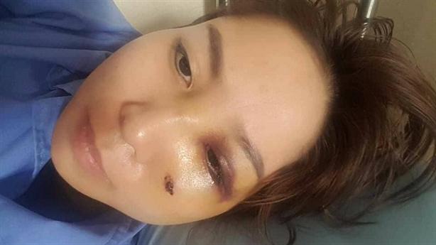 Vợ xinh bị chồng đánh vỡ mũi: Lên facebook nói mẹ chồng