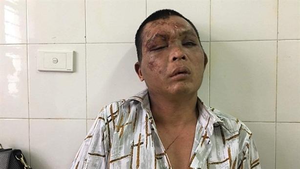 Nghi bắt cóc bé gái: Lời gia đình người bị đánh oan