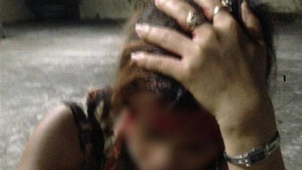 Chồng để nhân tình đánh vợ chảy máu đầu nói gì?