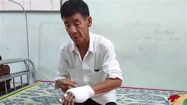 Phó công an bị tố đánh dân nhập viện: 'Con lỡ tay'