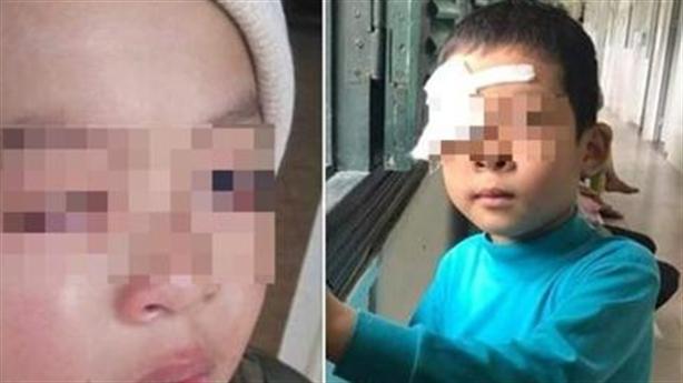 Học sinh bị chấn thương mắt: Né người va vào thước