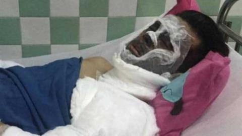 Việt kiều bị tạt axít, cắt gân: Đã khoanh vùng đối tượng