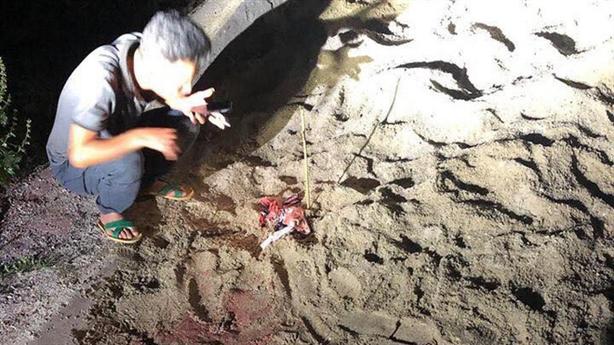 Tin mới vụ bé 7 tuổi bị đàn chó cắn tử vong