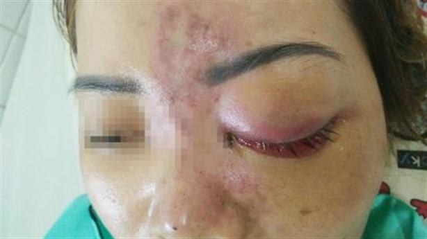 Xử phạt thẩm mỹ viện Minh Hà Clinic hoạt động chui
