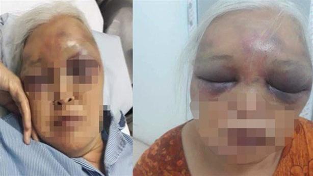 Vụ con rể đánh mẹ vợ: Con nhìn bố đánh chửi bà