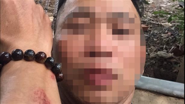 Nghi người quen CSGT đánh người: Khẳng định không quen biết