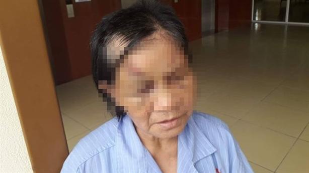 Cháu đánh bà ngoại gẫy 5 xương sườn: Vì hay mắng mẹ?