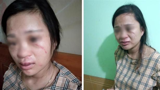 Chồng đánh vợ bầu động thai vì mua giày online: 'Xin lỗi'