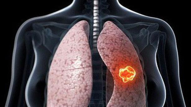 Phương pháp mới điều trị ung thư tại Việt Nam: Cẩn trọng