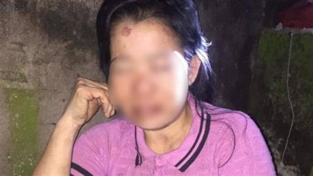 Người phụ nữ bị hành hung trong đêm: Đánh vào vùng kín