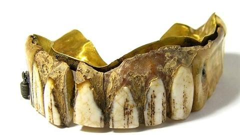 Tìm thấy hàm răng giả bằng vàng, ngà voi cực hiếm