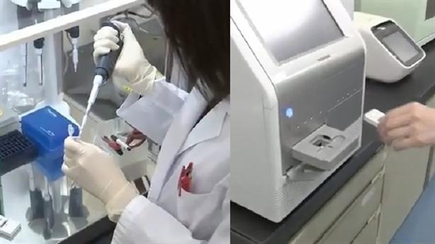 Phát hiện 13 loại ung thư với một giọt máu