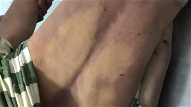 Tử vong trong trại giam: Bị phạm nhân cùng phòng đánh đập