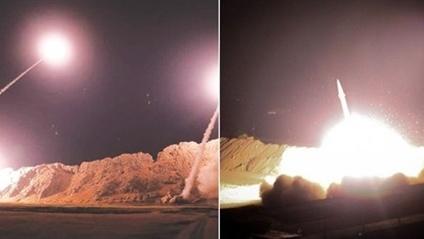 34 lính Mỹ chấn thương sọ não do tên lửa Iran?