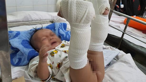 Nghi bố đánh bé sơ sinh gãy chân:'Tháng rưỡi dạy được rồi'