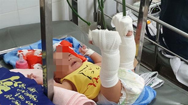 Bất ngờ lời người bố nghi đánh con sơ sinh gãy chân