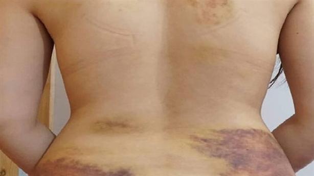 Nghi ép vợ quan hệ, chụp ảnh gửi bạn: Hai lần đau!