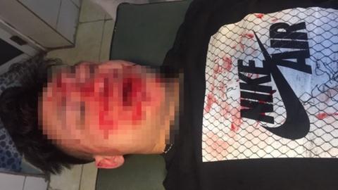 Cả nhóm côn đồ đánh dã man một bác sĩ trẻ