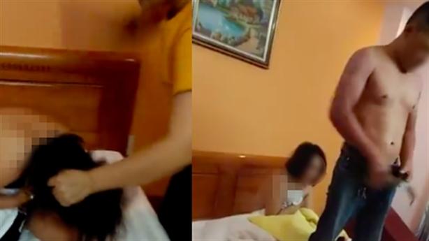 Thuê người đánh gãy tay chồng vì có bồ: Vẫn ở cùng