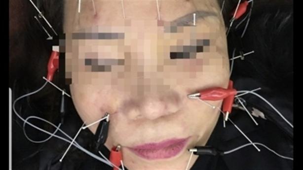 Khách tố liệt dây thần kinh khi làm đẹp tại BVTM Kangnam