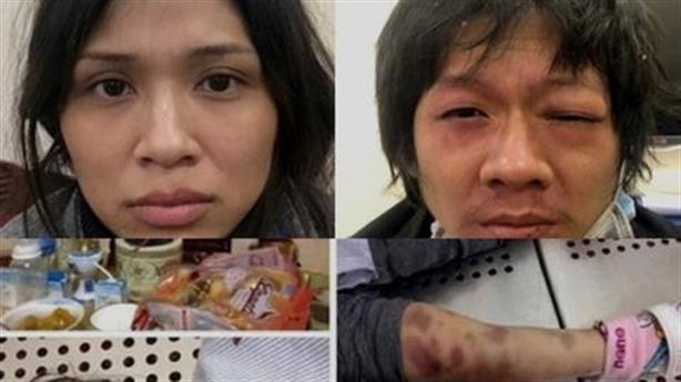 Bé tử vong do mẹ ruột bạo hành: Hành vi đáng sợ!