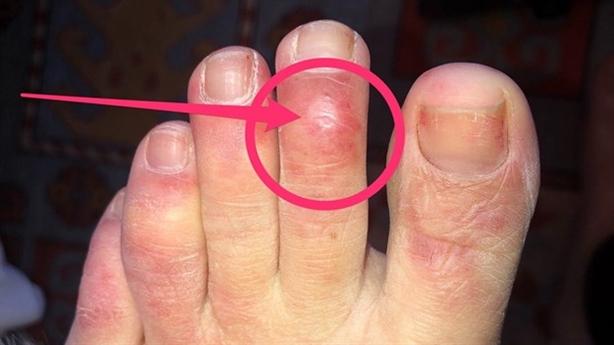 Ngón chân tiết lộ nhiễm COVID-19 dù không triệu chứng?