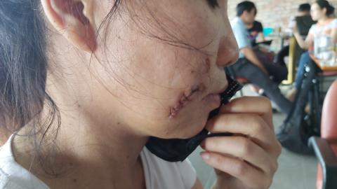 Người phụ nữ bị tình trẻ chém dã man, lột đồ