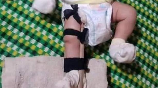 Bé 2 tháng tuổi bị cha đánh gãy chân: 'Do cháu khóc'