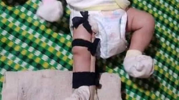 Tố cha đánh gãy chân con 2 tháng tuổi: 'Sơ ý...dẫm phải?'