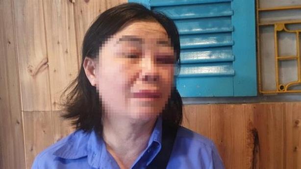 Đánh bầm mắt nhân viên xe buýt vì bị nhắc mở nhạc