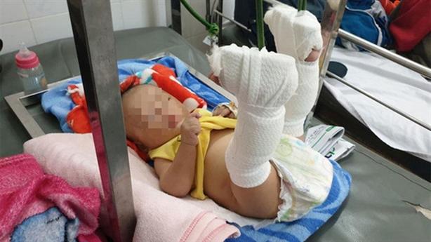 Bố đánh con 4 tháng tuổi gẫy chân vì mẹ bỏ đi