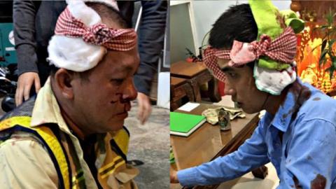 Đánh gục nhân viên BOT Ninh Xuân: Đi qua không trả tiền